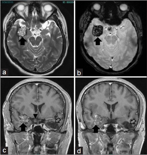 Figure 2: Axial T2 (a) weighted image shows heterogenous hyperintense lesion in the right temporal region (arrow). Gradient axial image (b) shows blooming suggesting cavernoma (arrow). Contrast enhanced Coronal T1 weighted images (c,d) show negligible enhancement within the lesion (arrow). Previous post operative changes are seen in the suprachiasmatic region (arrow head) and left temporal lobe (open arrow)
