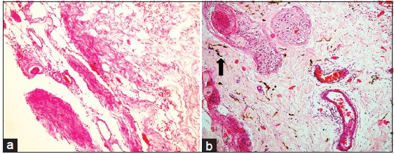Figure 3: HPE findings - (a) Photomicrograph showing fibro - collagenous tissue and fibro - adipose tissue (H and E x100). (b) Photomicrograph shows small islands of glial tissue along with neuro - melanin (arrow) admixed in a fibro - collagenous background (H and E x100)
