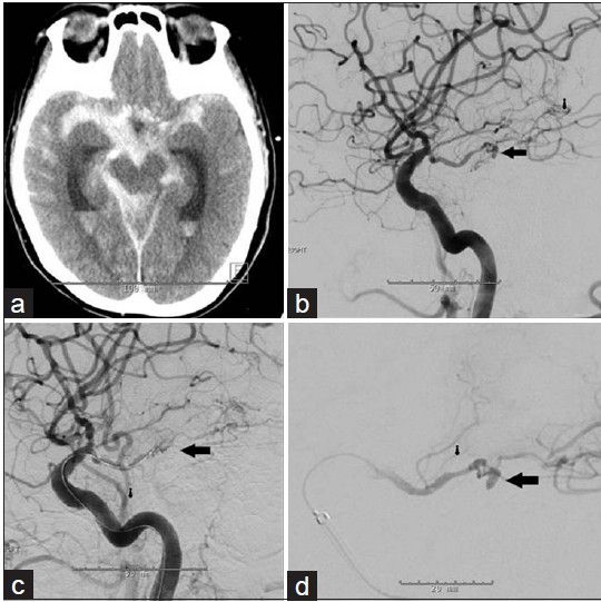 Figure 1: (a) CT scan of the head showing diffuse thick SAH in the basilar cisterns eccentric to the right. (b) Cerebral angiogram demonstrating a 3 × 1.2 mm right P2/P3 junction aneurysm with the aneurysm no longer visible on cerebral angiogram as the micro-catheter was advance into the parent vessel due to intraoperative vasospasm (c). The aneurysm was again demonstrated on cerebral angiogram done on the following day (d)