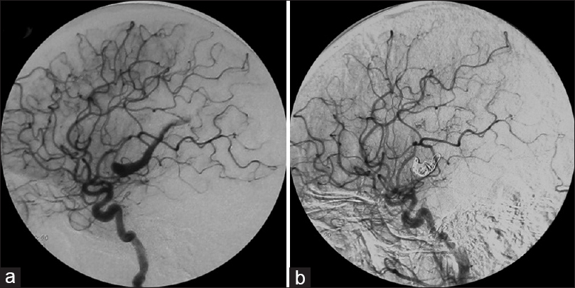 Figure 1: (a) Left carotid angiogram lateral view of a 9-year-old boy with ischemia demonstrating a giant middle cerebral artery aneurysm. (b) After coil embolization, the left carotid angiogram lateral view demonstrated complete obliteration of the aneurysm