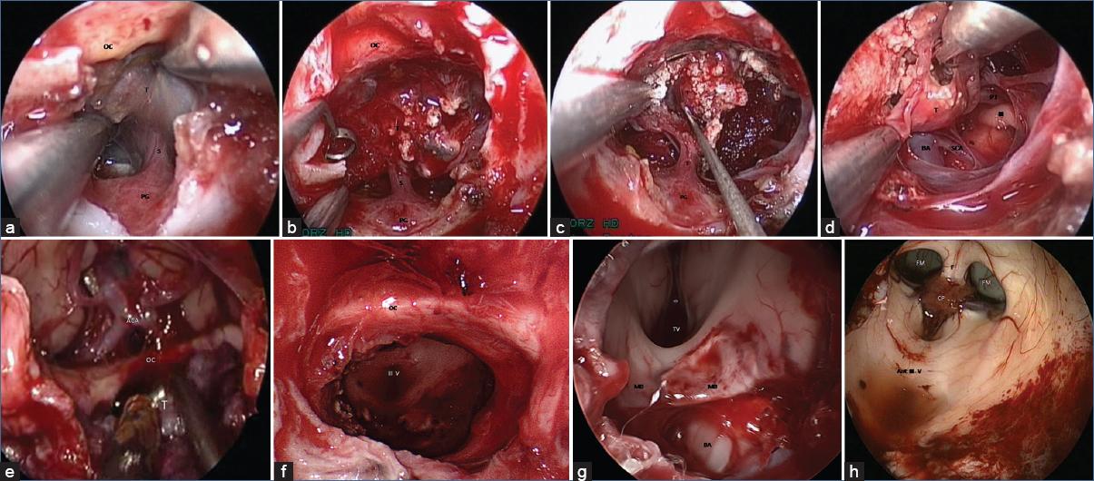 endoscopic endonasal transplanum transtuberculum approach