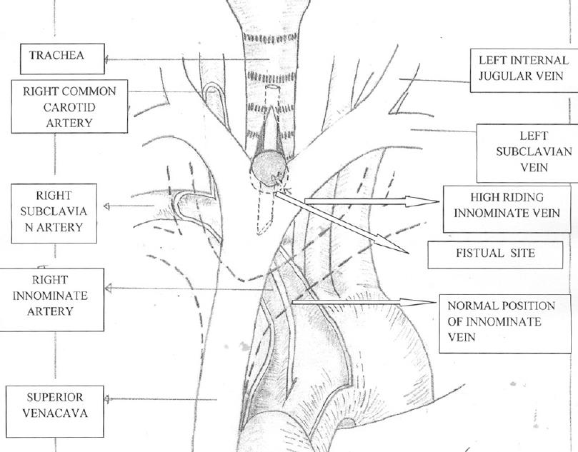 A rare case of an aberrant innominate vein causing posttracheostomy ...