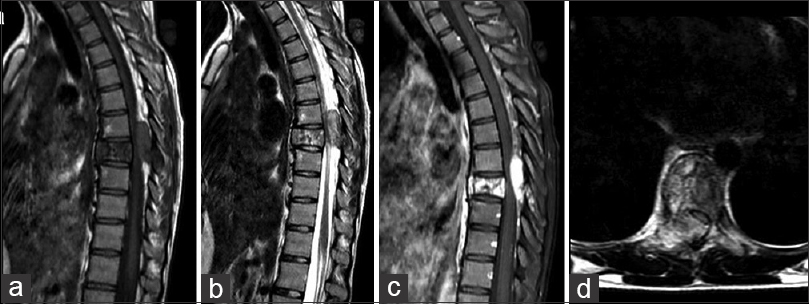 Figure 1: In the preoperative magnetic resonance imaging, a lesion causing destructive changes in the T8 vertebral body, compressing the thecal sac and the right posterior vertebral body elements at the same level and extending to the paraspinal soft tissue is observed. (a) T1 weighted sagittal, (b) T2 weighted sagittal, (c) contrasted sagittal, (d) T2 weighted axial images showing the lesion