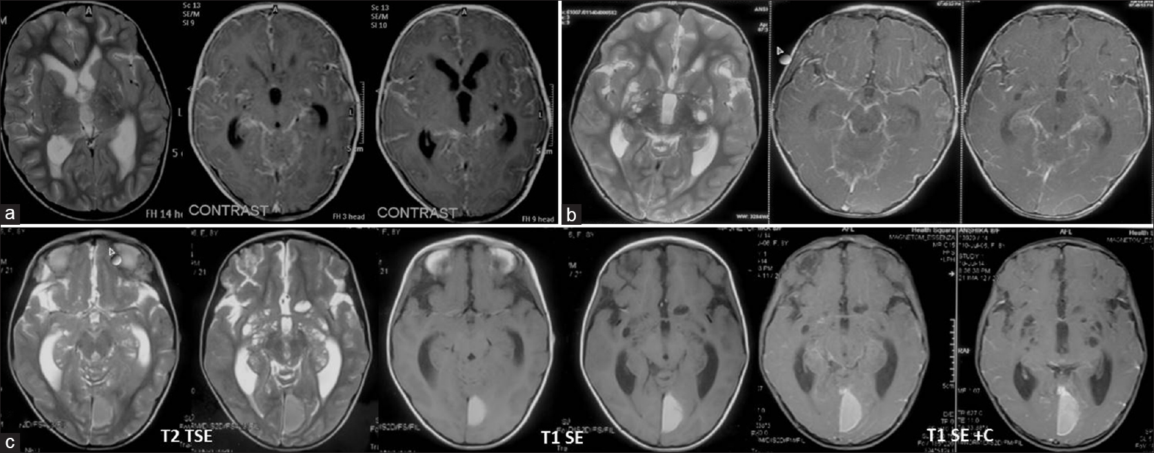hydrocephalus scholarly articles