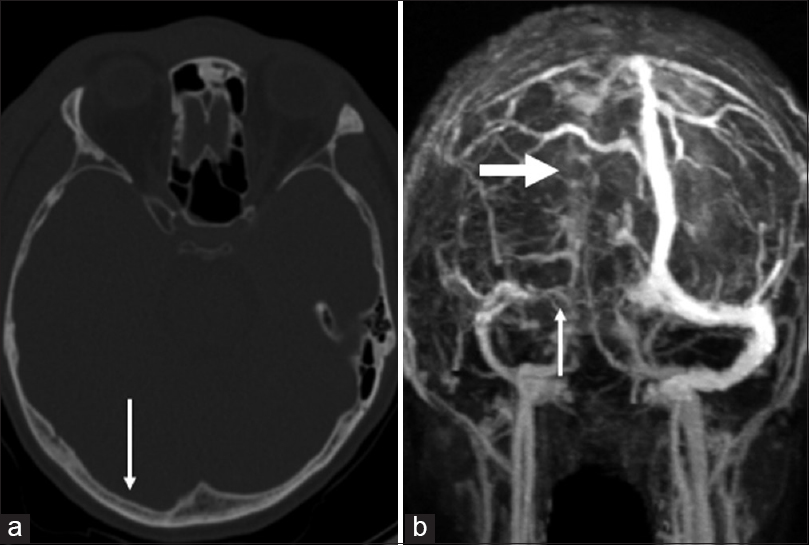Risk Factors And Early Diagnosis Of Cerebral Venous Sinus Occlusion