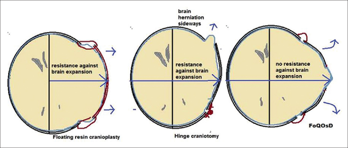 Four-quadrant osteoplastic decompressive craniotomy: A novel