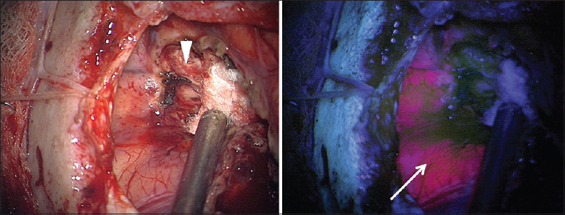 Figure 2: Intraoperative photograph showing the tumor resection cavity; left, white light appearance, and right, appearance under BLUE 400 filter. Diffuse strong red fluorescence is seen on surface (white arrow) around the resection cavity (white arrowhead). The cavity walls themselves are nonfluorescing