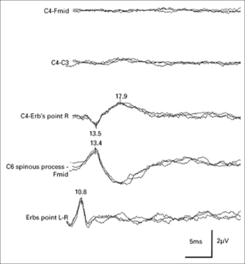 Figure 2: Bilateral missing cortical potentials after the anoxic brain damage