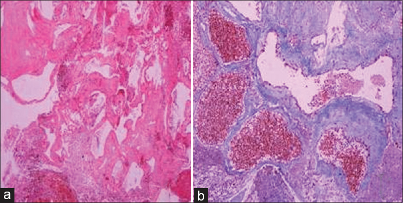 Figure 2: Histopathology slides showing the dilated venous channels with areas of hemorrhages, thrombosis, and hemosiderin deposition (a: ×10; b: ×40)