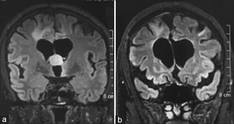 Figure 1: (a) MRI of a patient with a colloid cyst, where the cyst was not presenting at the foramen of Monro in earlier surgery. The recurrent cyst was excised by the interforniceal approach. (b) Postoperative MRI at 3 months shows complete cyst excision with preserved anatomy of the fornix. Post-operative memory disturbance recovered over a period of 1 year