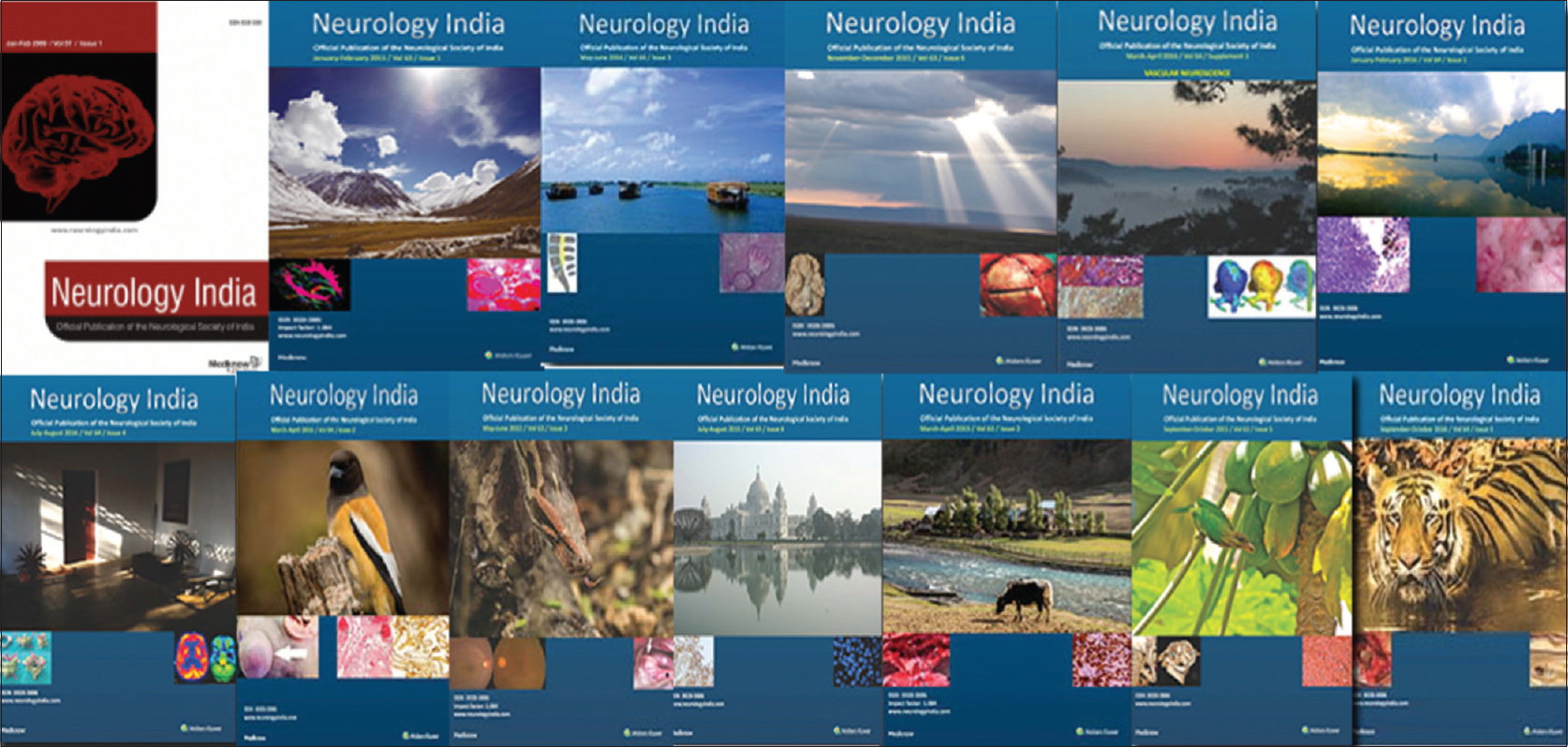 Figure 6: Neurology India: Official journal of the society catering to a multidisciplinary neuroscience readership