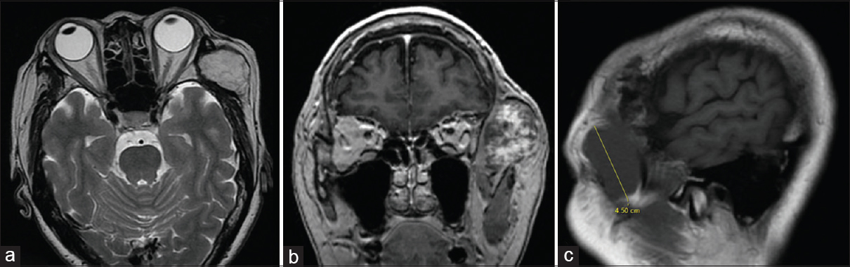 Figure 1: (a) T2-weighted axial, (b) T1-weighted coronal with gadolinium, and (c) T1-weighted plain sagittal magnetic resonance imaging of the head showing a 4.5 cm T1-weighted hypointense, T2-weighted hyperintense, and heterogeneously enhancing well-defined intramuscular lesion in the left temporalis muscle