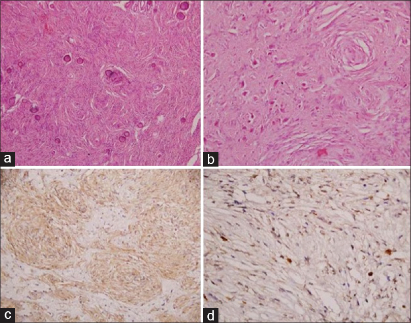 Figure 2: Photomicrograph showing features of a transitional meningioma with focal psammomatous calcification (a, haematoxylin and eosin [H and E], ×100). Tumor is infiltrating into the adjacent cortex (b, H and E, ×200). Tumor cells are immunopositive for epithelial membrane antigen (c, immunohistochemistry [IHC] staining, ×200). MIB1 labelling index is low (d, IHC, ×400)