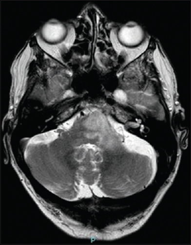 Figure 1: Axial magnetic resonance T2 demonstrating a lesion in the left pons extending laterally to the left cerebellar peduncle