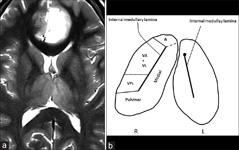 Figure 1: (a) Axial T2-weighted image of the brain showing a glioma extending into bithalmic and left cingulate gyral areas, demonstrating the internal medullary lamina of the thalami. The laminar division is visible on the right side with a septa separating the pulvinar from the ventral posterior nucleus. (b) Line diagram of both thalami with labelling of the anatomical structures; A: anterior; VA: ventral anterior; VL: ventral lateral; VPL: ventro-postero-lateral