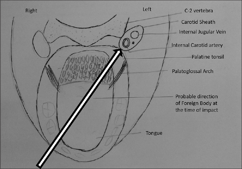 Figure 2: Schematic line diagram of the relevant anatomy of oropharynx showing the probable path of the foreign body