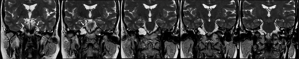 Figure 2: Coronal T2 weighted images show bilateral cystic lesions and association with bilateral Meckel's caves (arrows)