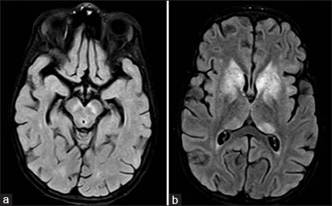 nmda receptor encephalitis mri
