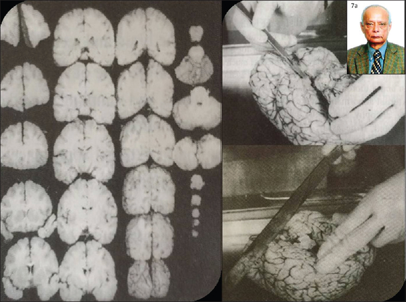Figure 7: Brain cutting session being conducted by Dr. Ashru K Banerjee. 7a: File photo of Dr. Ashru K Banerjee