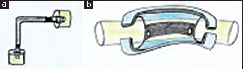 Figure 2: Devices to avoid proximal catheter kinking. (a) Right-angled connector; (b) Right-angled adaptor (with the catheter passing through the adapter)