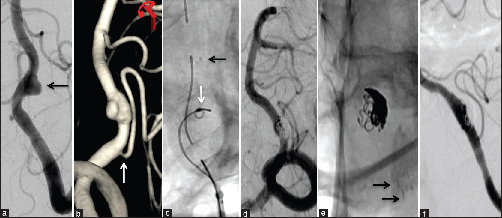 Figure 2: (a) A 40-year old female patient admitted with subarachnoid hemorrhage was noted to have a dissecting aneurysm involving the V4 segment of the left vertebral artery. (b) The three-dimensional rotational angiography showing the left V4 vertebral artery dissecting aneurysm; note the origin of left PICA proximal to the aneurysm along with a non-dominant contralateral vertebral artery. (c) Microcatheter with a few coil loops were deployed within the aneurysm sac prior to deployment of a laser cut stent. (d and e) Multiple small coils were deposited and were followed by deployment of a second laser cut stent within the previous one. Note the circumferential coils around the stent. (f) On follow up, complete occlusion of the aneurysm sac occurred along with straightening of the V4 segment of the vertebral artery