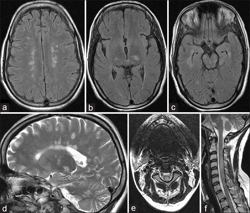 Figure 3: Magnetic resonance imaging of the brain of a patient with aquaporin 4 antibody positive neuromyelitis optica depicting fluid attenuated inversion recovery hyperintensities in the central semiovale (a), the mesodiencephalic areas involving the thalami (b) and adjoining temporal lobes along with mesencephalon (c). T2 hyperintensities can be seen in the supra- as well as infratentorial compartment (cerebellum) in the parasagittal section (d). Longitudinally extensive hyperintensity of the spinal cord can be appreciated on the T2 -axial (e) and T2-sagittal sections (f)