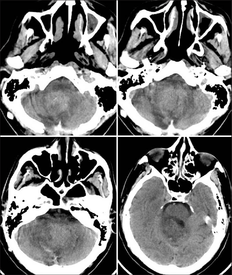 Figure 1: CT scan brain non-contrast study showing evidence of a previous midline suboccipital craniectomy. There is a hyperdense midline posterior fossa lesion, not well circumscribed, with ill defined margins