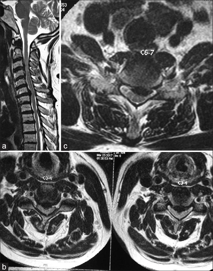 Figure 1: (a) MRI sagittal image of the cervical spine showing degenerated and prolapsed discs at the C3-4 and C6-7 levels. (b) MRI axial image at the C3-4 level showing disc prolapse with cord compression. (c) MRI axial image at the C6-7 vertebral level showing disc prolapse and cord compression