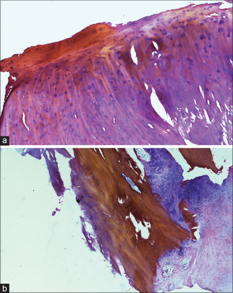 Figure 4: (a) Histopathology of the removed disc material showing degenerated collagen with yellowish deposits. (b) Histopathology of the involved disc showing the dark yellowish deposits