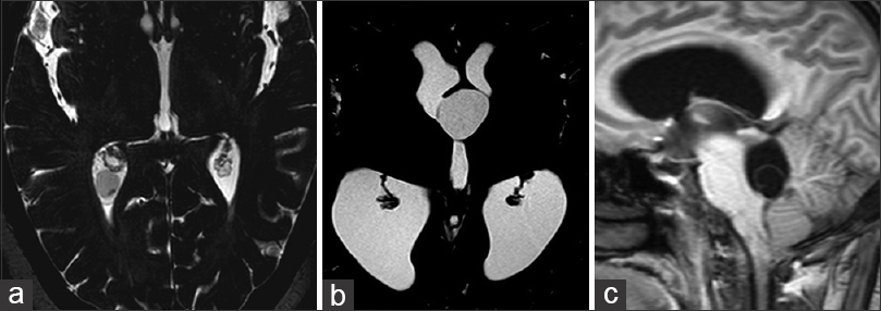 Figure 4: (a-c) Intraventricular cysticercal cysts. (a) T2W image showing a small cysticercal cyst in the right atrium. (b) Heavy T2W image showing a large anterior third ventricular cysticercal cyst. (c) T1W sagittal image showing a fourth ventricular cysticercal cyst