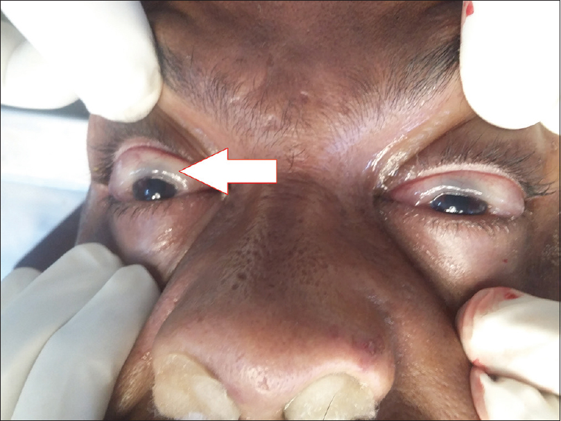 Figure 1: Prolapse of the conjunctiva due to edema