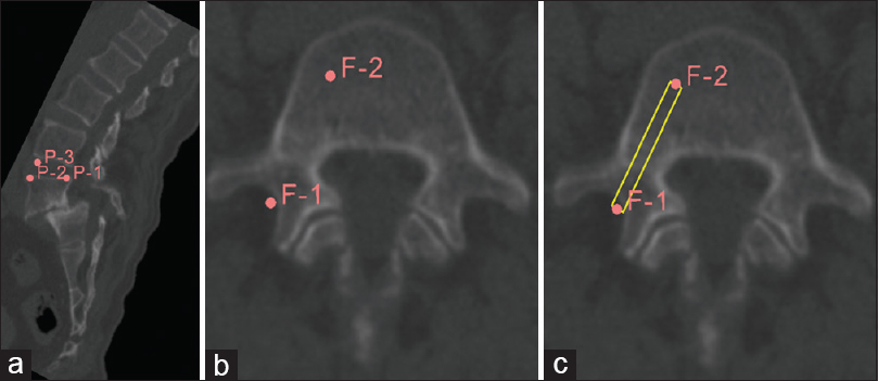 Figure 7: Entry-target mode of pedicle screw trajectory planning in a patient with grade II L5-S1 spondylolisthesis. (a) Correction of vertebra rotation. (b) Marking of fiducials. (c) Desired trajectory for selected entry and target points and the panel displaying angle of the inserted screw