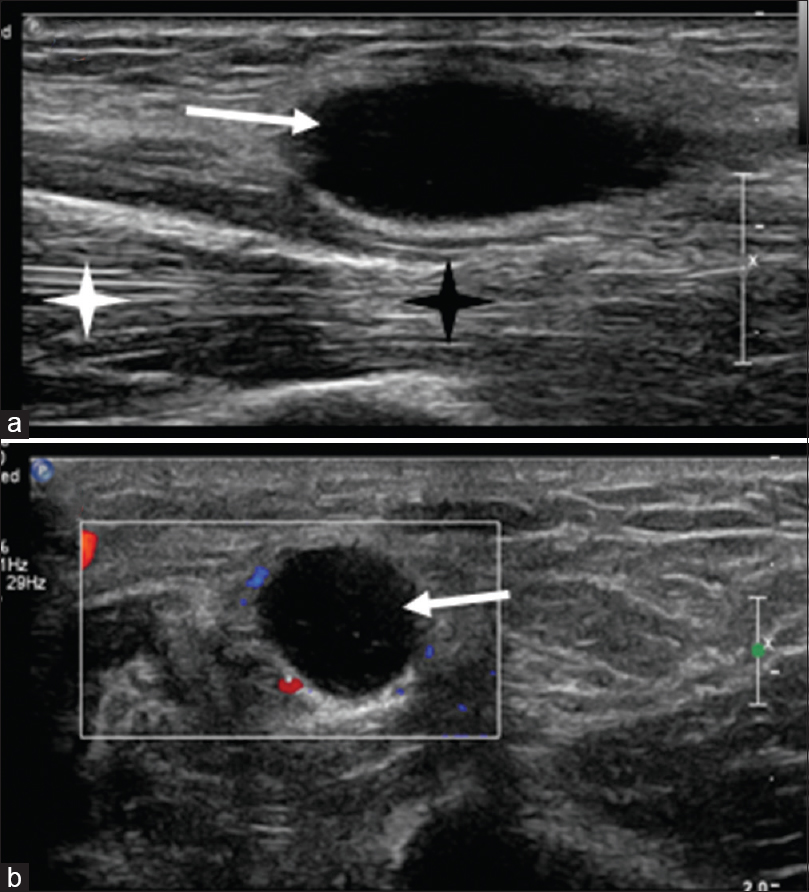Figure 1: Ultrasonography of the left arm. (a) Longitudinal B-mode image showing an anechoic cystic lesion (white arrow) immediately beneath and along the course of the ulnar nerve. The nerve appears flattened (black asterisk) in comparison to the normal-appearing nerve superiorly (white asterisk). (b) the color Doppler scan showing the absence of flow voids inside the cyst (white arrow)