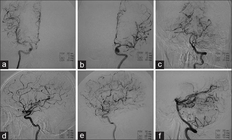 Figure 1: Cerebral angiography showing multiple segments of abnormally dilated and narrowed branches of cerebral arteries, suggesting a vasculitis. The dilated segments of vessels appeared distended beyond their expected normal caliber. (a and b) Injection of the right internal carotid artery (ICA). (c and d) Injection of the left ICA. (e and f) Injection of the vertebral artery