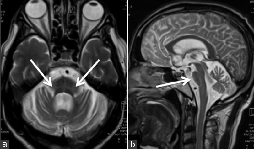 Figure 2: Axial (a) and sagittal (b) T2 weighted images of a patient of MSA-P shows the classical 'hot cross bun' sign in the midbrain (arrows in A). Note the marked atrophy of the pons (arrow in B) and the cerebellum
