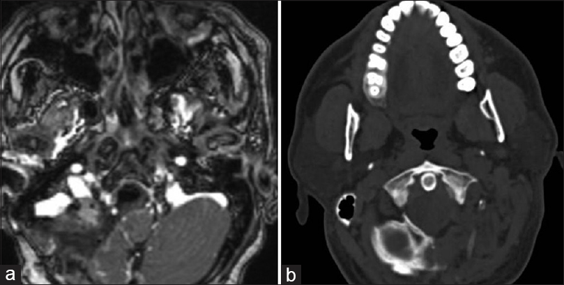Figure 4: (a) T1-weighted contrast enhanced magnetic resonance images at follow-up showing a Grade II excision of the meningioma. (b) CT axial bone section shows the extent of bony removal needed for exposure and removal of the lesion
