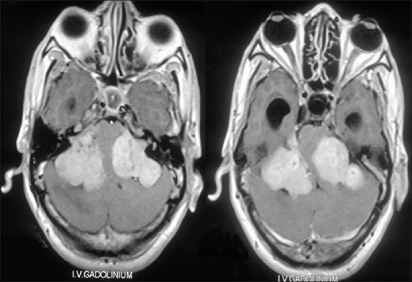 Figure 2: Contrast enhanced T1 weighted image showing bilateral vestibular schwannomas in a patient with neurofibromatosis II. Brainstem is seen severely compressed between the two tumors