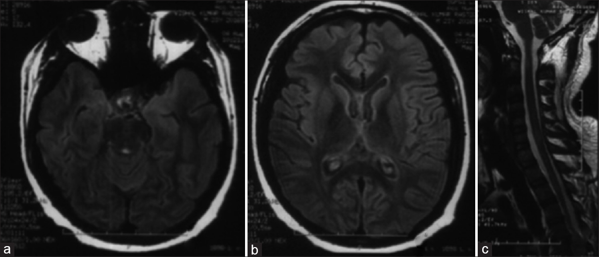Figure 4: FLAIR image of the brain (a and b) and T2 image of the spinal cord showing near complete resolution of the lesions; (c) after spinal cord