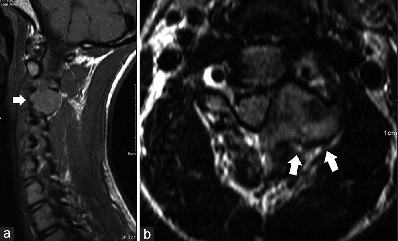 Figure 3: (a) Sagittal view of the cervical MRI. Contrast enhancement can be seen. (b) Axial T2-weighted cervical MRI reveals the mass lesion