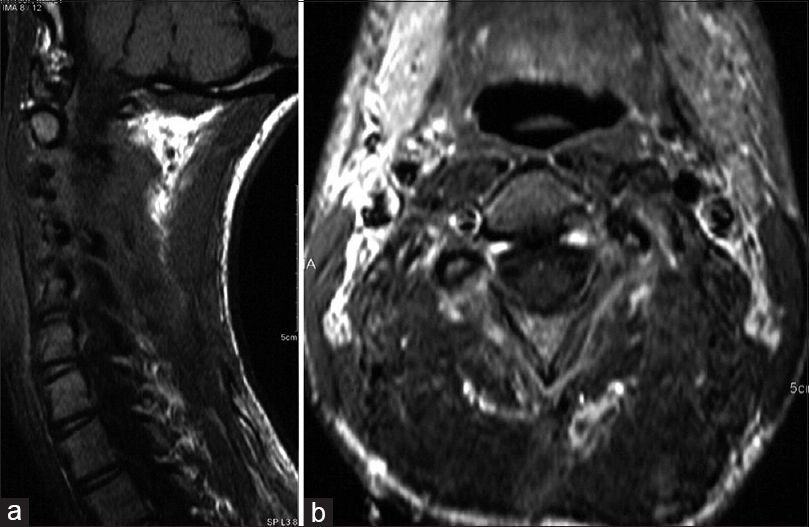 Figure 5: (a) Sagittal view of the cervical MRI. There is no residual tumor or contrast enhancement. (b) Axial MRI view of the C3 level, with no findings of any residual tumor