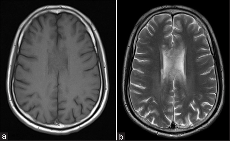 Figure 6: (a and b) Case 2: The corpus callosal lesions show hypointense signals on T1WI and hyperintense signals on T2WI