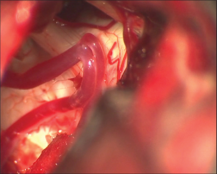 Figure 4: Intraoperative photograph of trigeminal nerve after the loop of superior cerebellar artery was freed from the brainstem side and axilla of the nerve