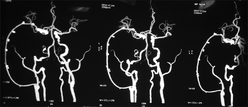Figure 2: Postoperative CT angiography revealing graft patency with good opacification of the right middle cerebral artery and its branches. Pseudo-aneurysm in the right cavernous internal carotid artery is not visualized