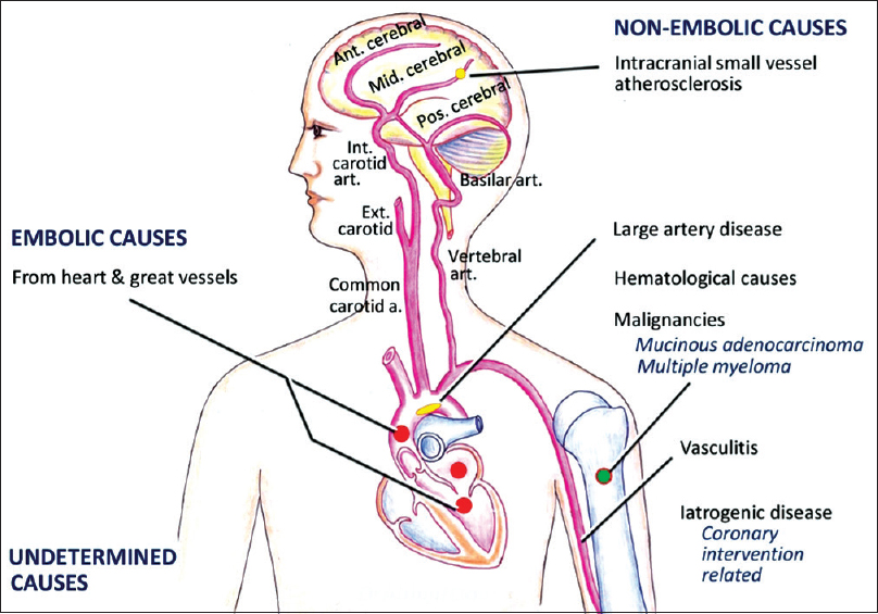 Figure 1: Etiology of acute multiple infarcts in multiple cerebral circulations (hand drawn by Dr. Abhijit Das)