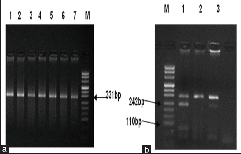Figure 2: Representative band patterns for the <i>eNOS</i> -786 T>C genotype. (a) Characteristic PCR bands of 308 bp product. (b) RFLP analysis of representative individuals with homozygous or heterozygous genotypes. Marker: pUC Mix Marker, 8, ready to use