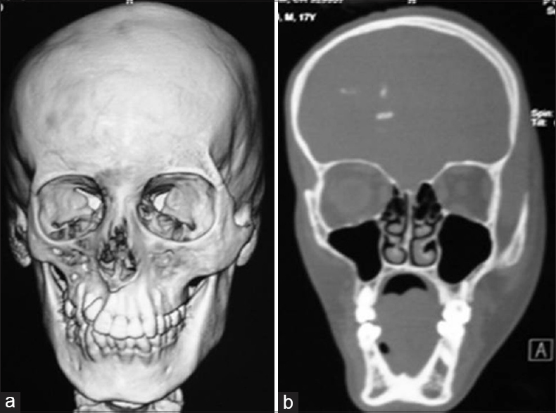 Figure 2: Three-dimensional volume rendered computed tomography scan (a) image depicting the bony atrophy involving the right sided facial skeleton, which is also appreciated on coronal bone window image (b). Also noted is right-sided cerebral calcification