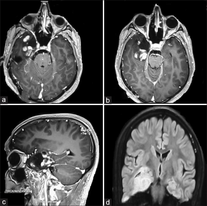Figure 1: Contrast enhanced MRI of a patient with axial (a and b) and sagittal (c) films showing right anteromesial temporal solid-cystic mass. (d) shows the fluid attenuated inversion recovery image with hyperintense right anteromesial temporal mass