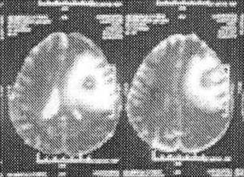 Figure 1: MRI revealed well-encapsulated thick-walled ring enhancing lesion with intense perilesional edema (could be granulomatous lesion, tuberculoma), and mass effect by within left frontal subcortical white matter