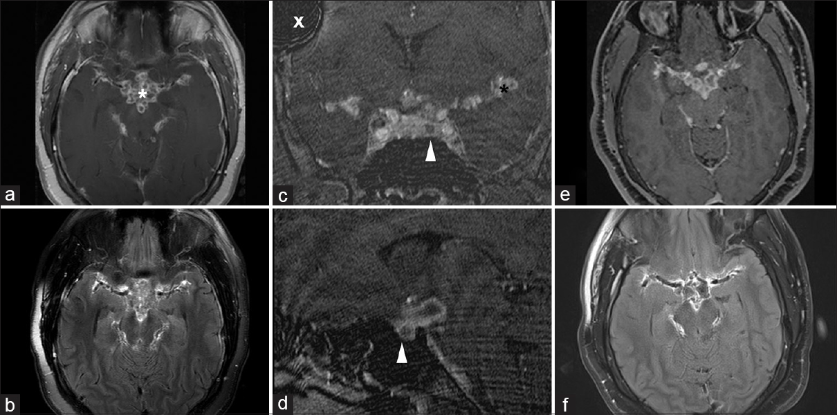 Figure 1: MRI images demonstrate basal meningitis and a pituitary adenoma. Preoperative MRI images demonstrate severe basal meningitis (<i>asterisk</i>) in T1W postcontrast image (a), and in FLAIR images (b). Inflammatory mass extends from the midline along the middle cerebral arteries bilaterally. Dedicated pituitary 3D SPGR postcontrast coronal (c) and sagittal (d) images demonstrate a hypoenhancing adenoma (<i>white arrowhead</i>) within the sella. T1W postcontrast (e) and FLAIR (f) images obtained 18 months following surgery demonstrate improving basal meningitis. 3D SPGR – volumetric spoiled gradient, FLAIR – fluid attenuated inversion recovery, MRI – magnetic resonance imaging, T1W – T1 weighted