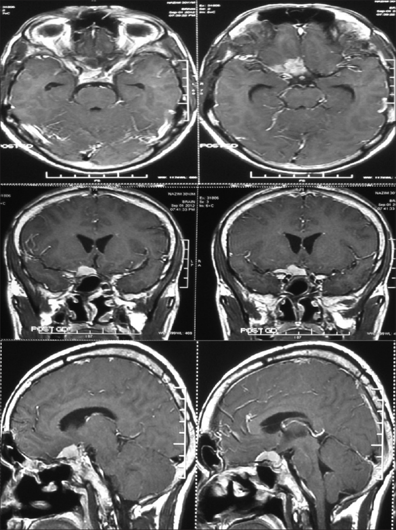 Figure 1: Contrast-enhanced MRI showing an extraaxial, enhancing mass lesion straddling the planum sphenoidale and right anterior clionoid process